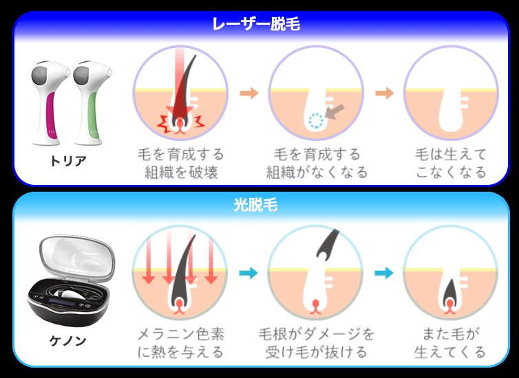「レーザー脱毛」と「光脱毛」の効果の違い